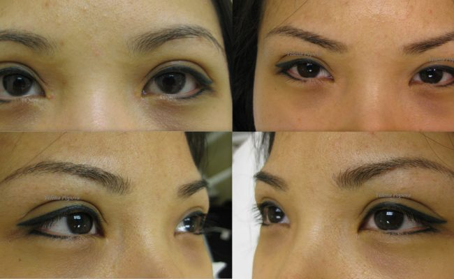 New-Eyebrows-Before-After-03