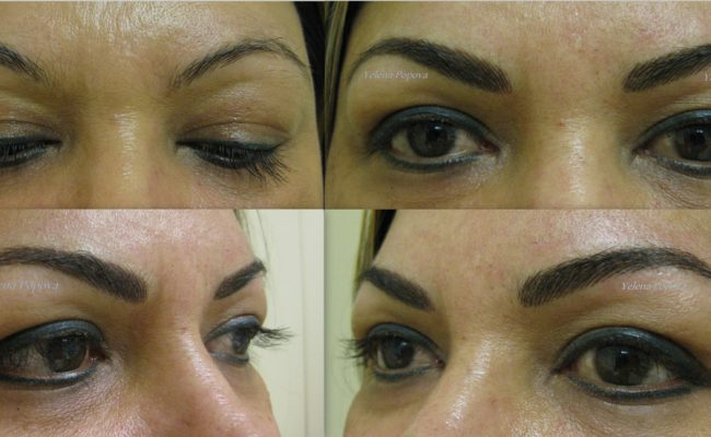 New-Eyebrows-Before-After-14