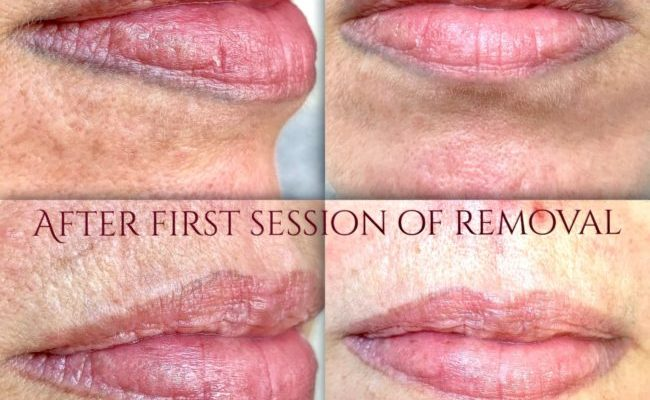 Lip tattoo removal