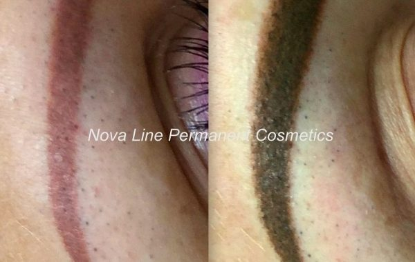 Color Corrections / Tattoo removal