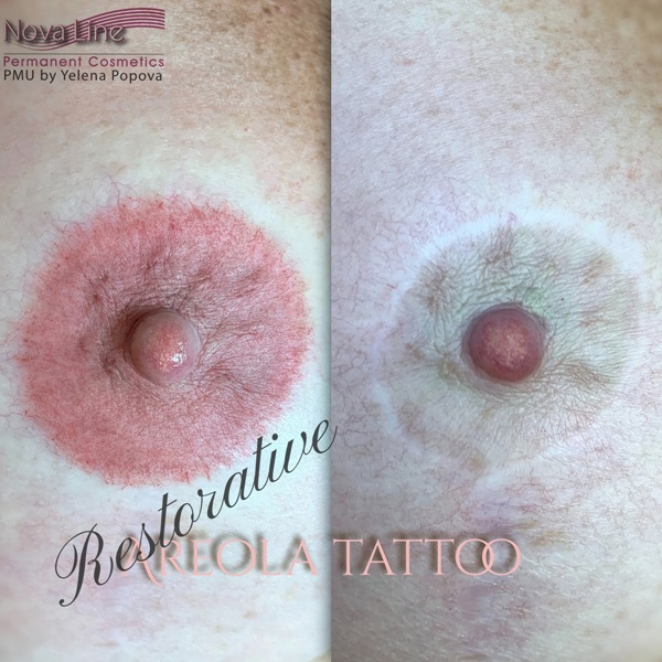 areola tattoo