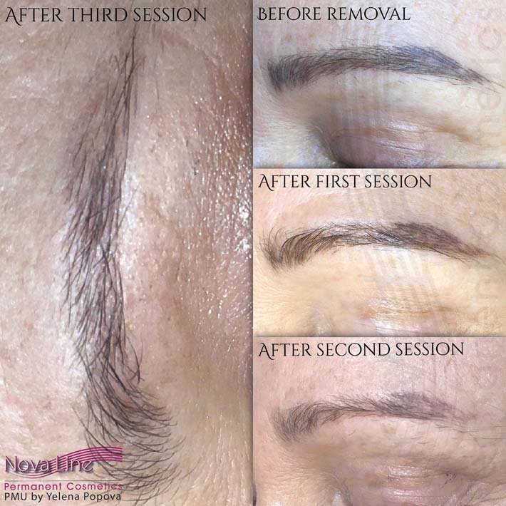 Permanent Makeup Tattoo Removal